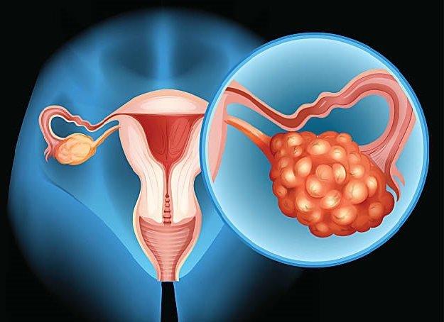 Рак яєчників: причини, симптоми, лікування, виживання на різних стадіях