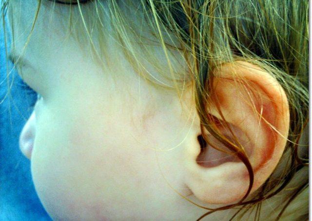 У вухо потрапила вода і заклало: що робити в домашніх умовах