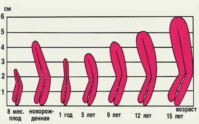 Що таке аплазія матки і шийки матки