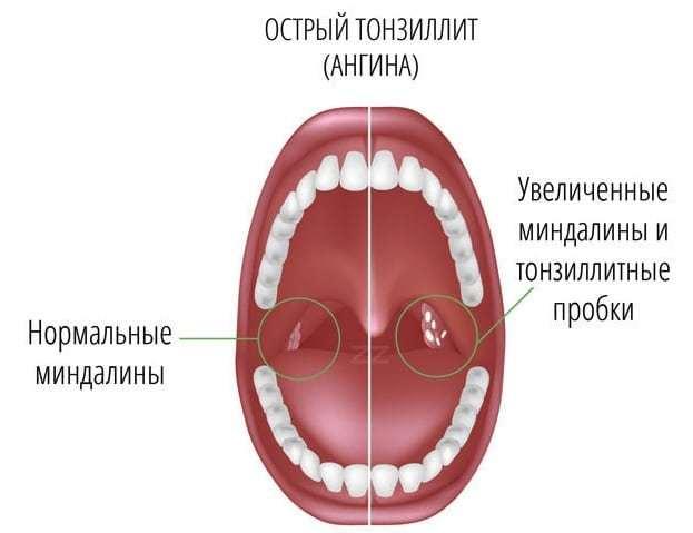 Тонзиліт камінь: видалення пробок з мигдалин, як прибрати, ніж лікувати