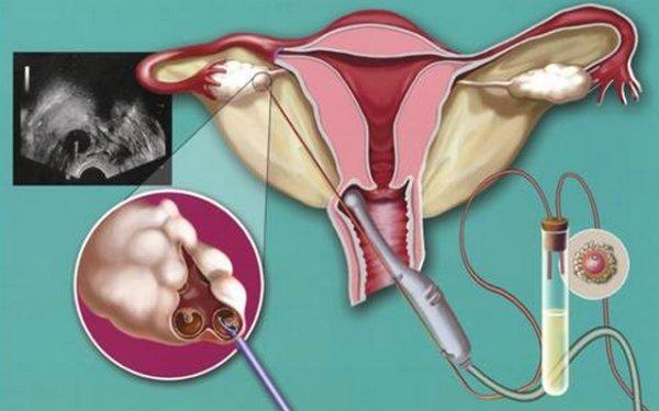 Пункція кісти яєчника: як робиться, наслідки, відгуки