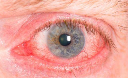 Болить куточок ока ближче до носа: причини і лікування