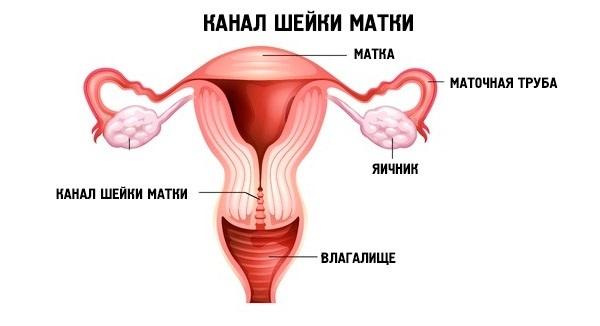 Що таке кіста шийки матки