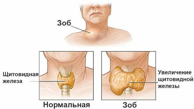 Кашель при щитовидці: симптоми і лікування, методи діагностики і профілактика