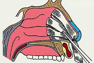 Тампонада носа при кровотечі: техніка виконання для зупинки