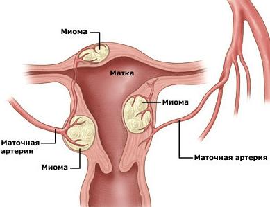 Чому коліт в області матки