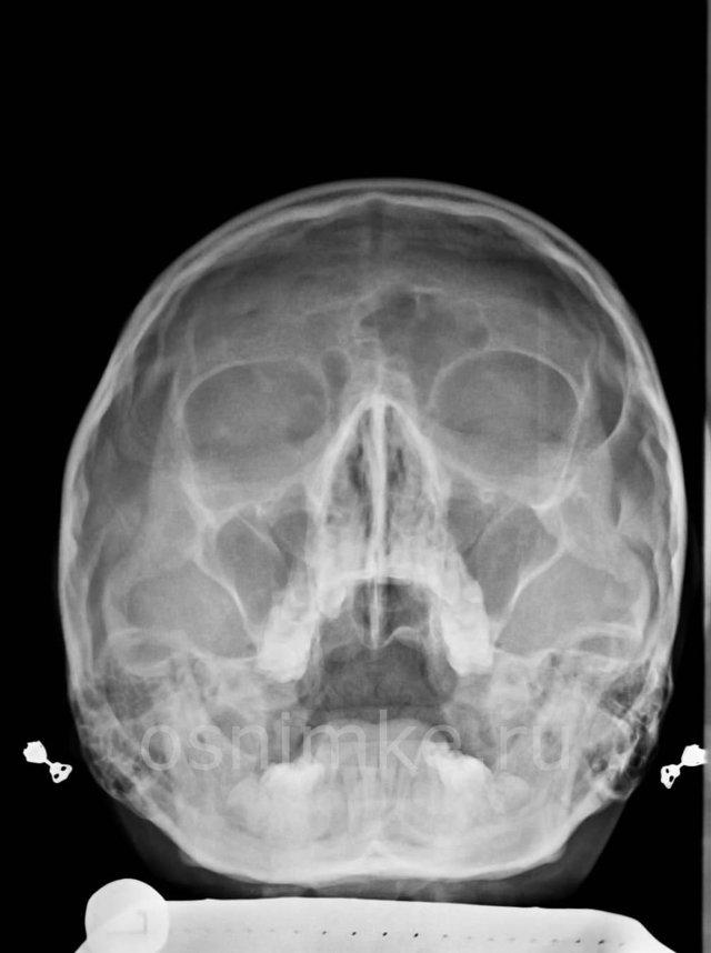 Фронтит на рентгенівському знімку і МРТ: коли необхідний, що показує?