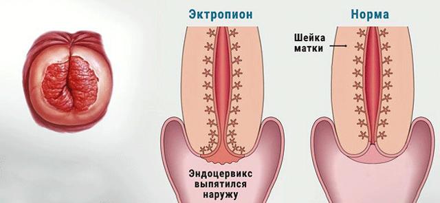ерозірованний ектропіон