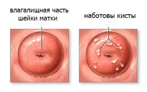 Ретенційна кіста шийки матки
