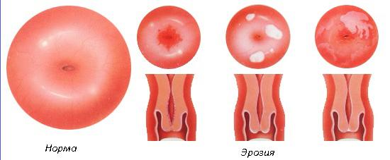 Ерозія шийки матки і ВПЛ