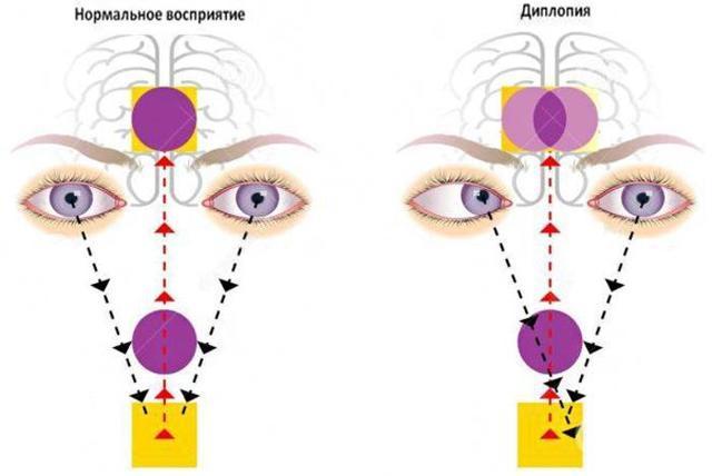 «Тетризолін»: інструкція із застосування, побічні дії і аналоги