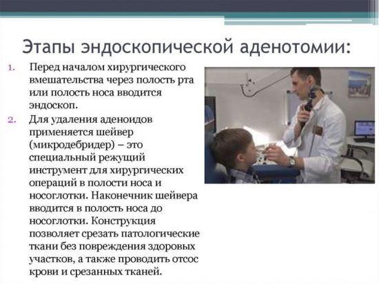 Ендоскопія носа: що показує дослідження ЛОР органів при огляді