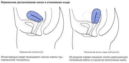 Ретродевіація тіла матки