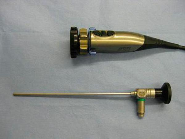 Ендоскопія пазух носа: опис і застосування методу