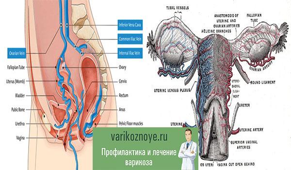 Причини варикозного розширення вен матки