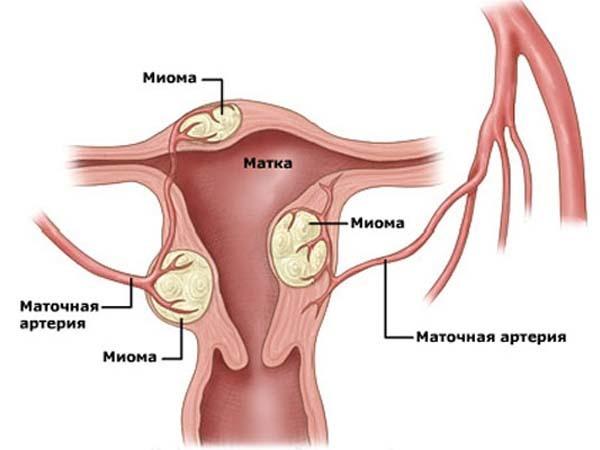 Ознаки маткової кровотечі