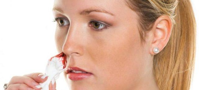 Кров з носа при гаймориті: причини і лікування виділень