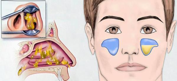 Болить ніс всередині, зовні, кінчик при натисканні або дотику: причини і лікування