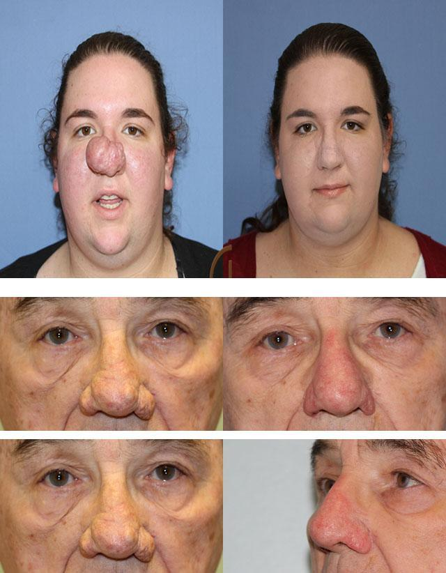 Освіти на шкірі носа: причини, види, лікування та профілактика