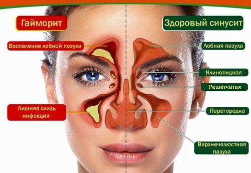 Пристінковий гайморит: причини, симптоми і лікування