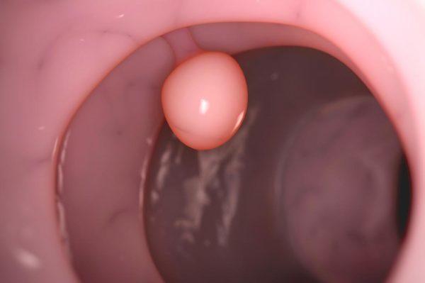 Поліп цервікального каналу шийки матки